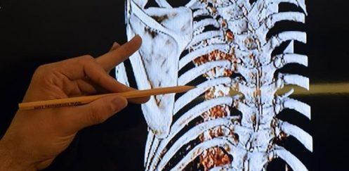 'Sinir Dokusu Mühendisliği' Hastalara Umut Olacak